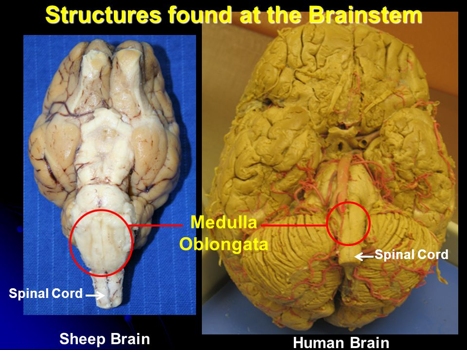 Structures found at the Brainstem