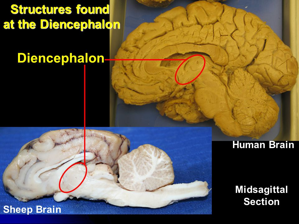 Structures found at the Diencephalon
