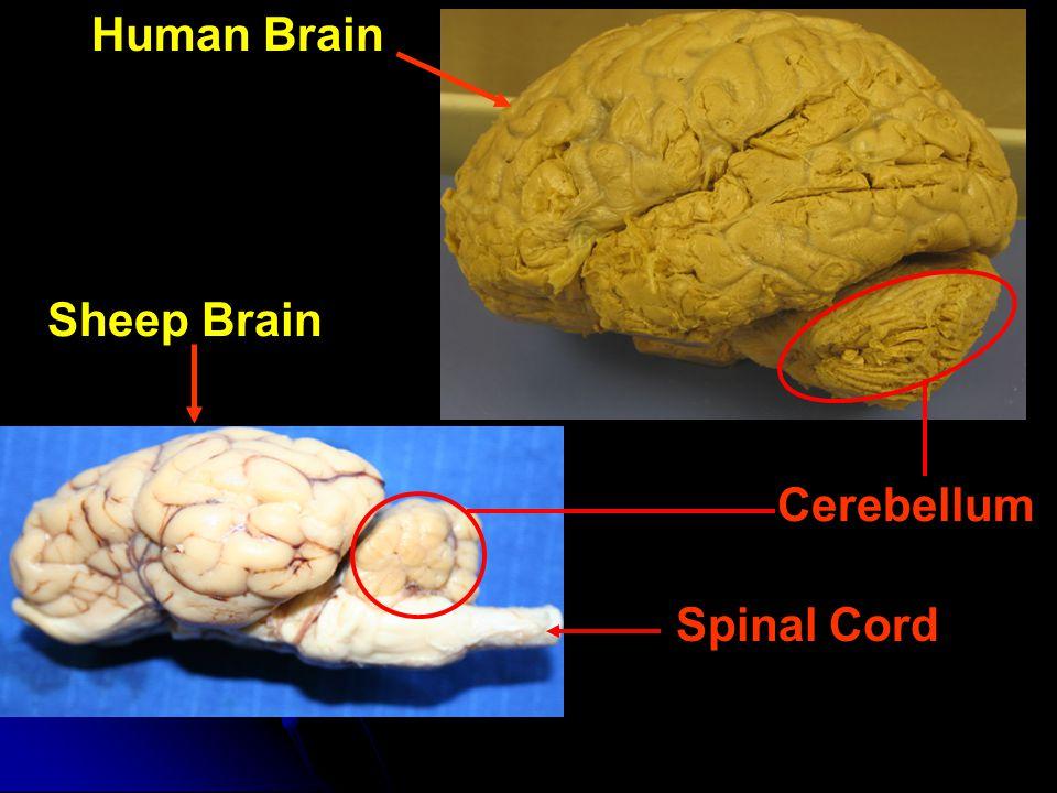 Human Brain Sheep Brain Cerebellum Spinal Cord