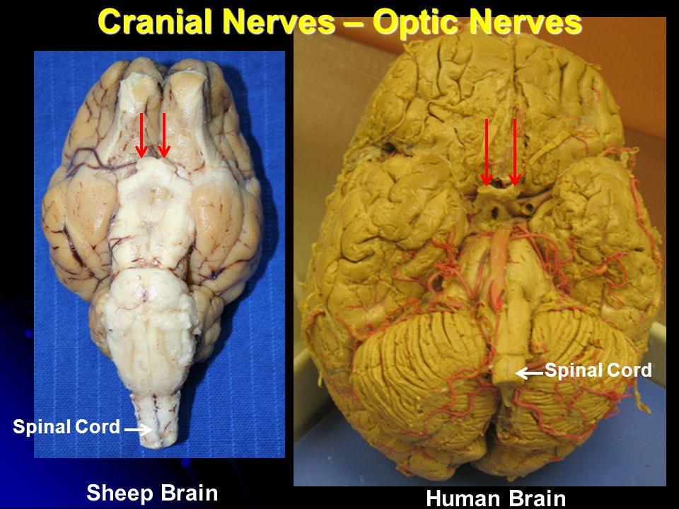 Cranial Nerves – Optic Nerves