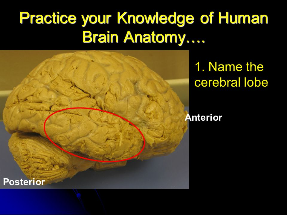 Practice your Knowledge of Human Brain Anatomy….