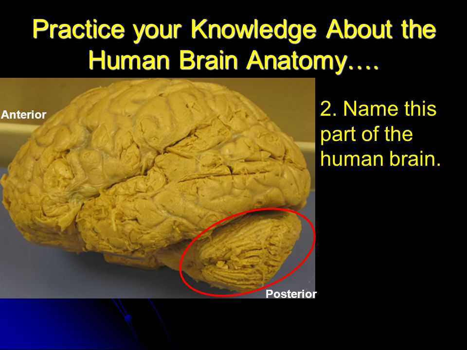 Practice your Knowledge About the Human Brain Anatomy….