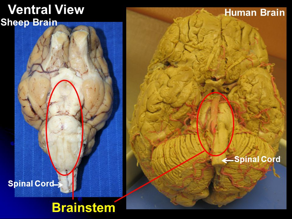 Sheep brain anatomy ventral - photo#50