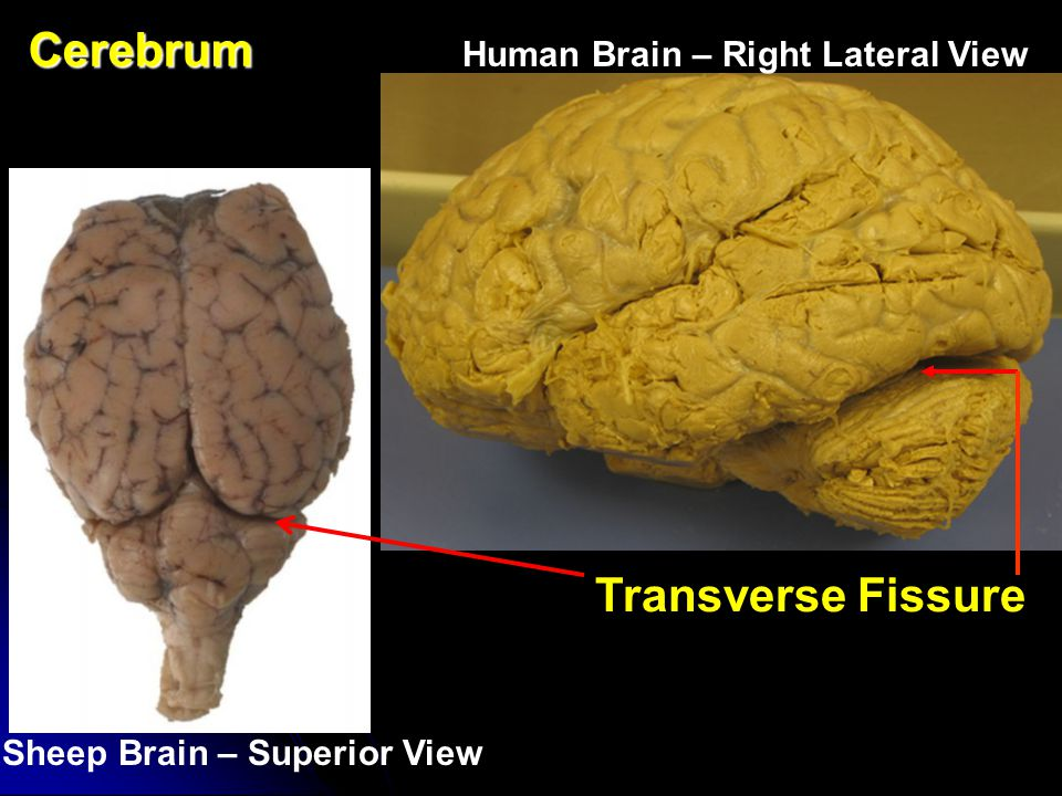 Cerebrum Transverse Fissure Human Brain – Right Lateral View