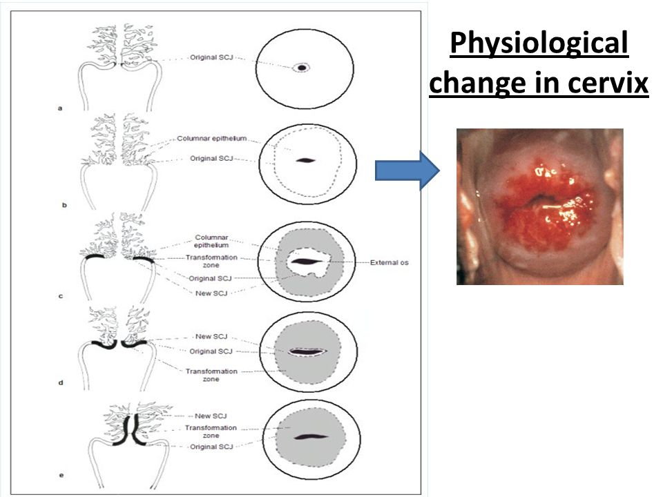 Physiological change in cervix