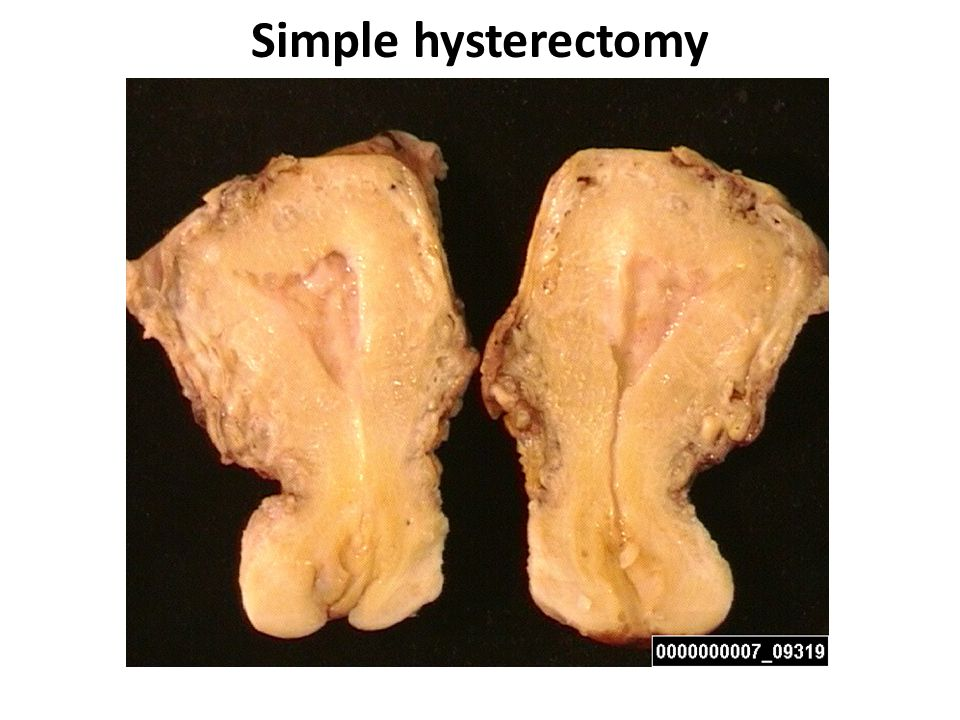Simple hysterectomy