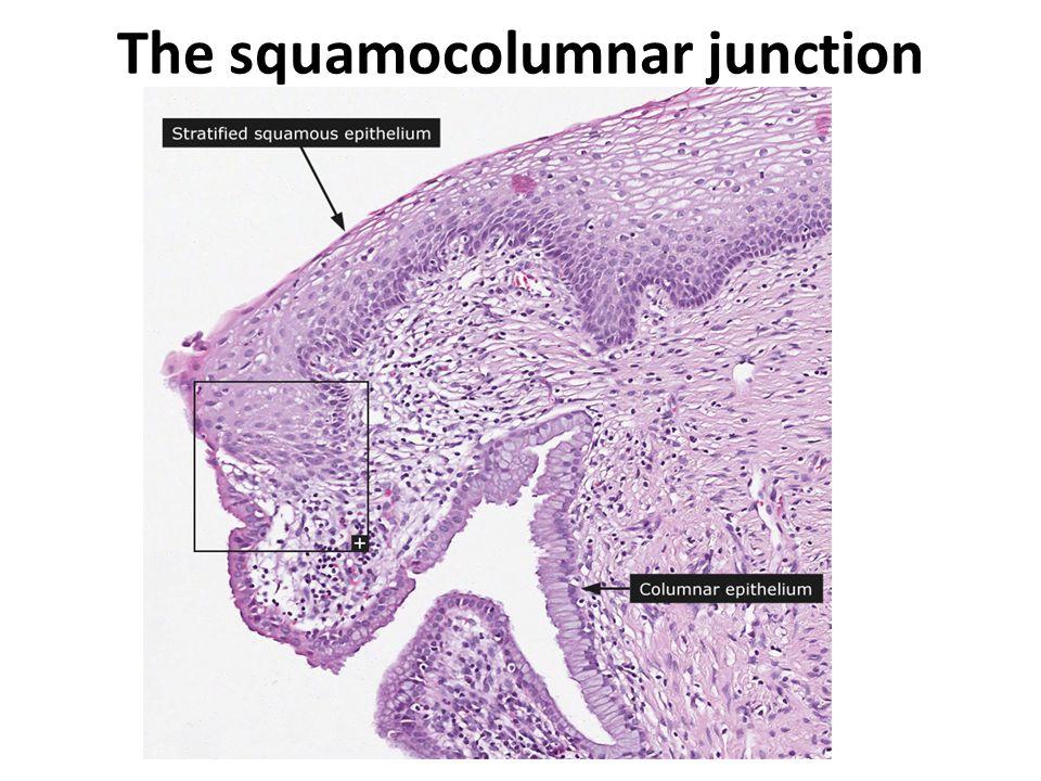 The squamocolumnar junction