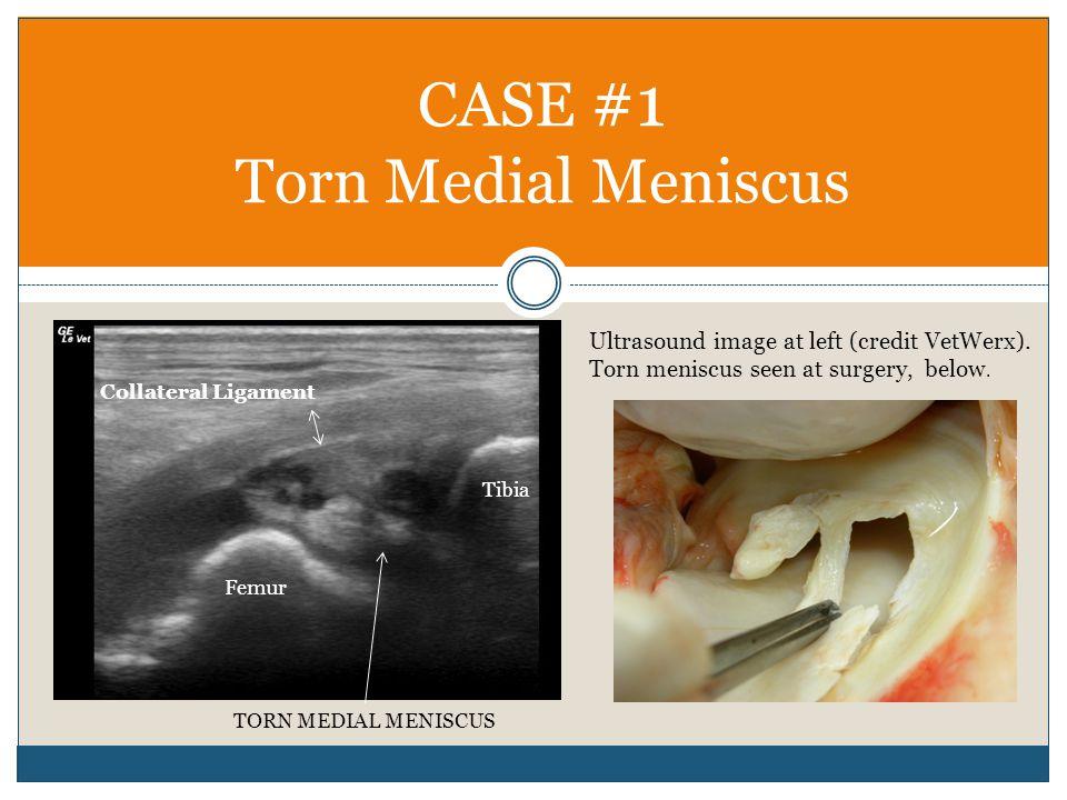 CASE #1 Torn Medial Meniscus