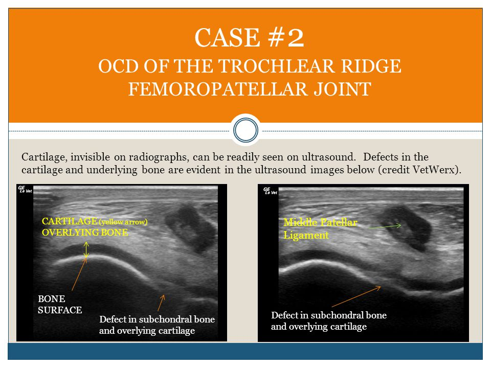 CASE #2 OCD OF THE TROCHLEAR RIDGE FEMOROPATELLAR JOINT