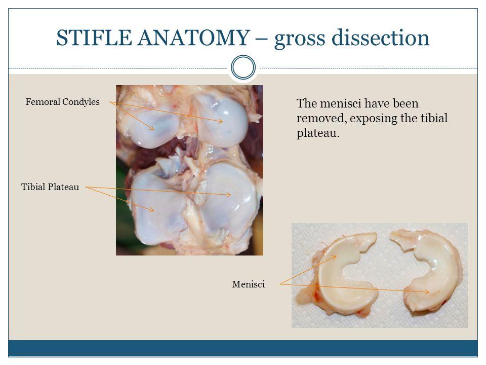 STIFLE ANATOMY – gross dissection