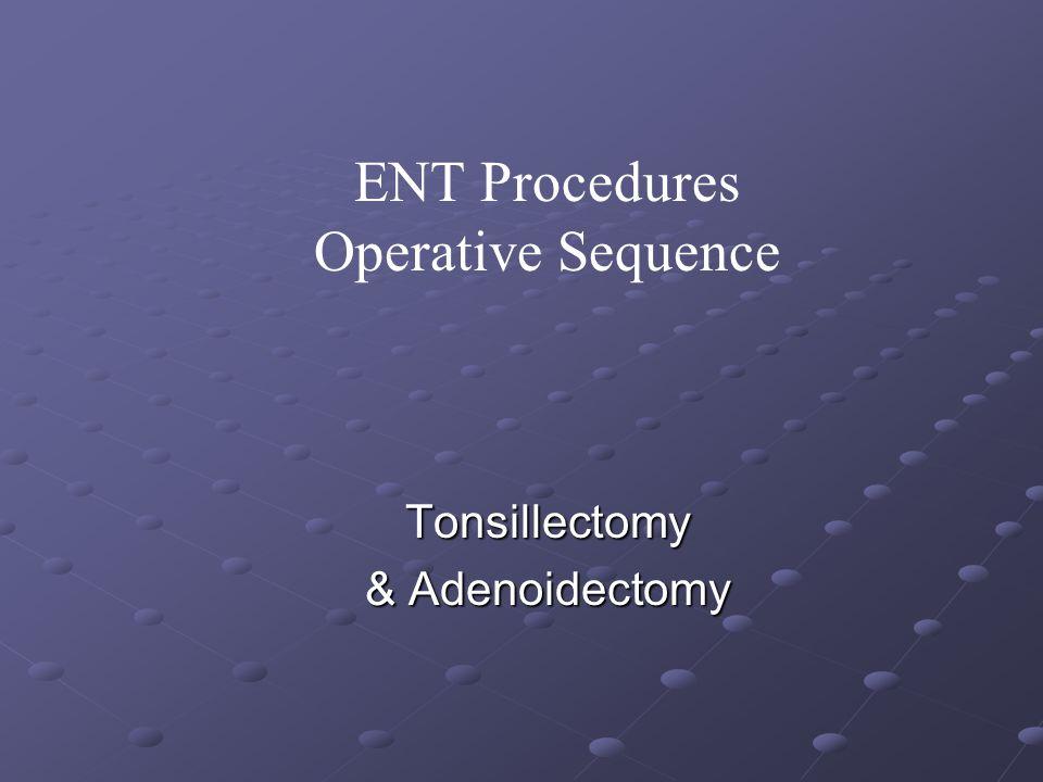 Tonsillectomy & Adenoidectomy