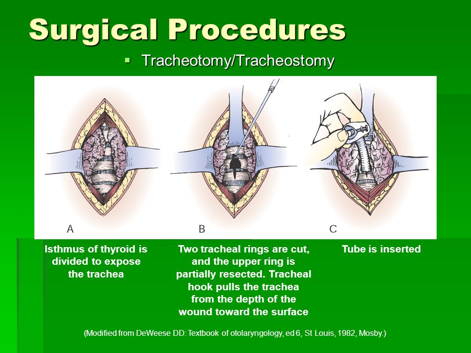 Isthmus of thyroid is divided to expose the trachea