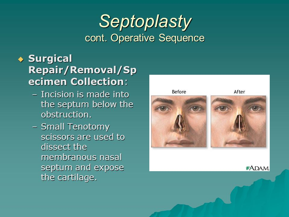 Septoplasty cont. Operative Sequence