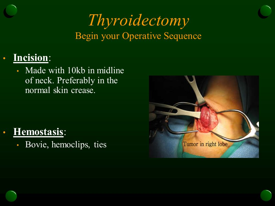 Thyroidectomy Begin your Operative Sequence