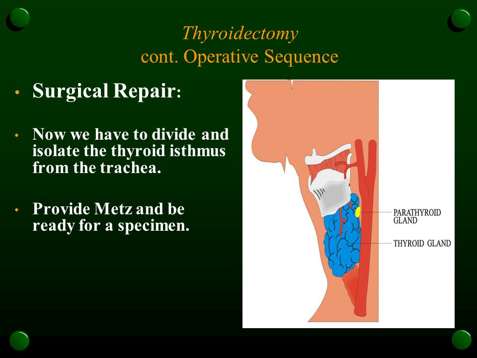 Thyroidectomy cont. Operative Sequence