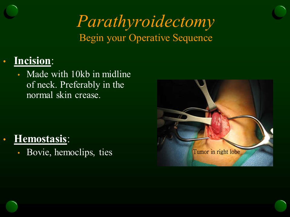Parathyroidectomy Begin your Operative Sequence