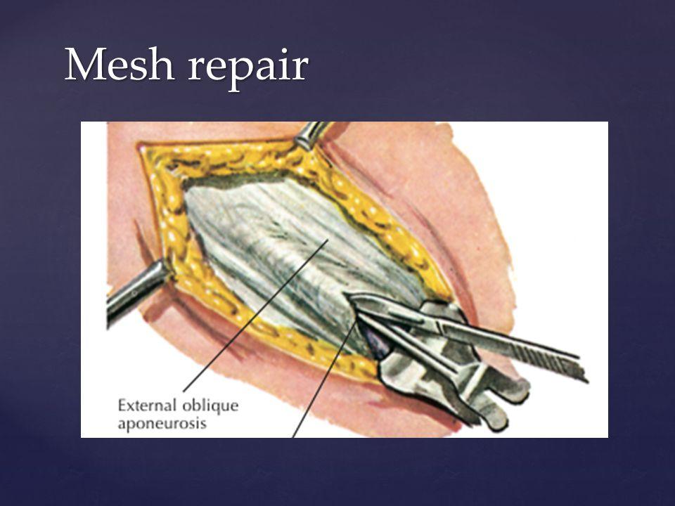Mesh repair