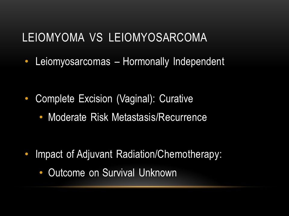 Leiomyoma vs leiomyosarcoma
