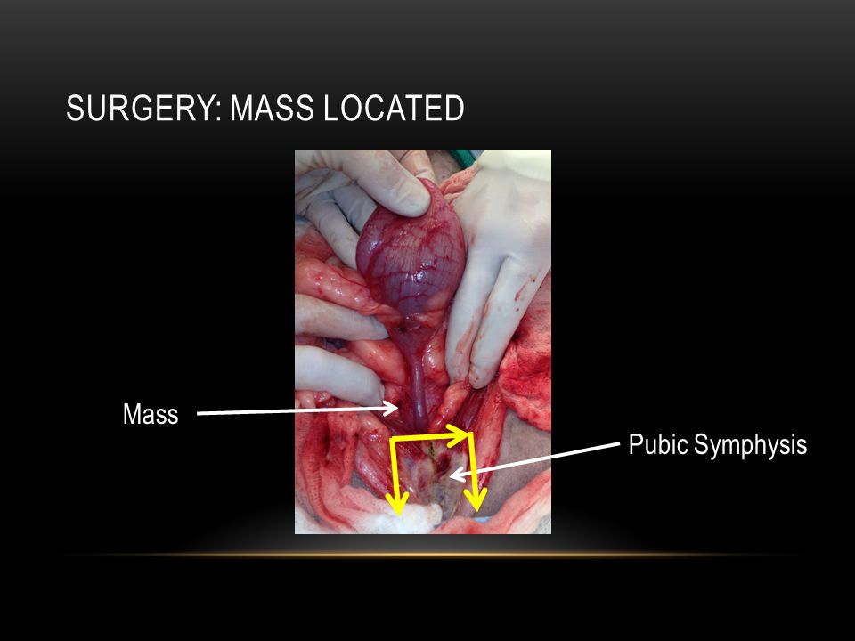 Surgery: Mass located Mass Pubic Symphysis