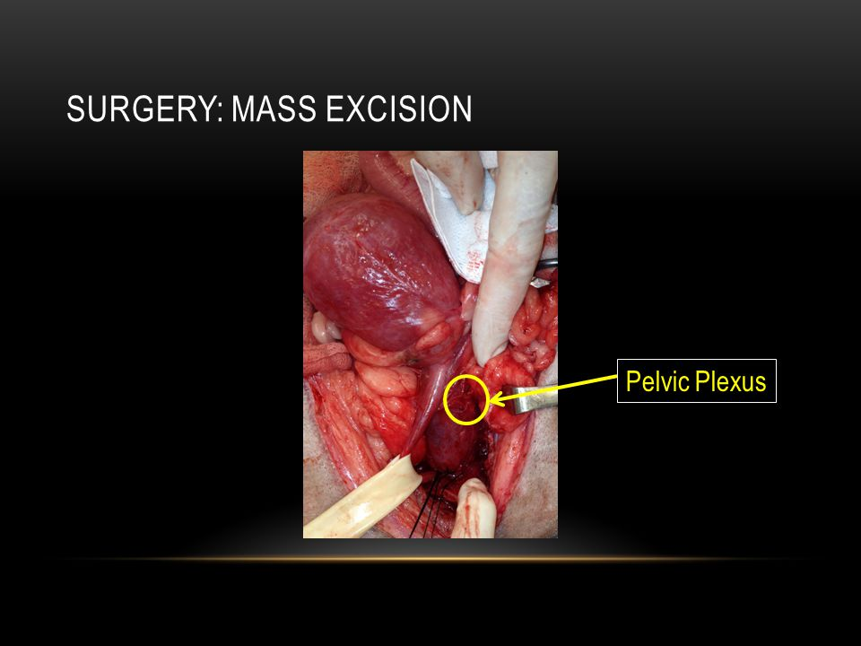 SURgery: Mass Excision