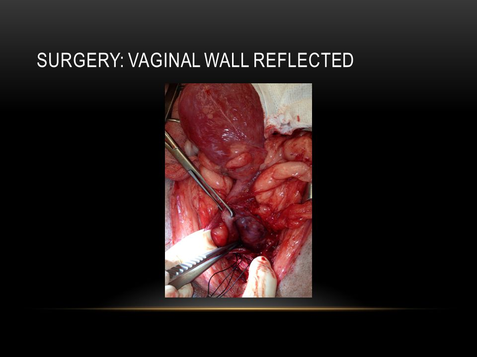 Surgery: Vaginal Wall Reflected