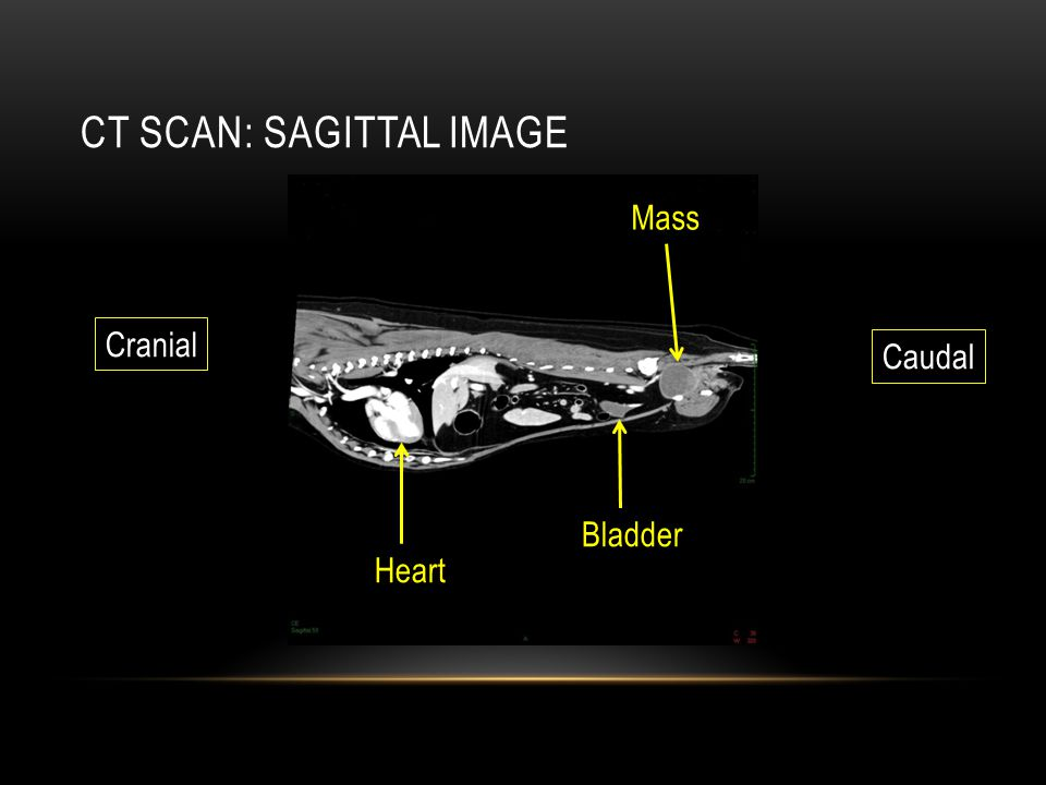 Ct scan: Sagittal image