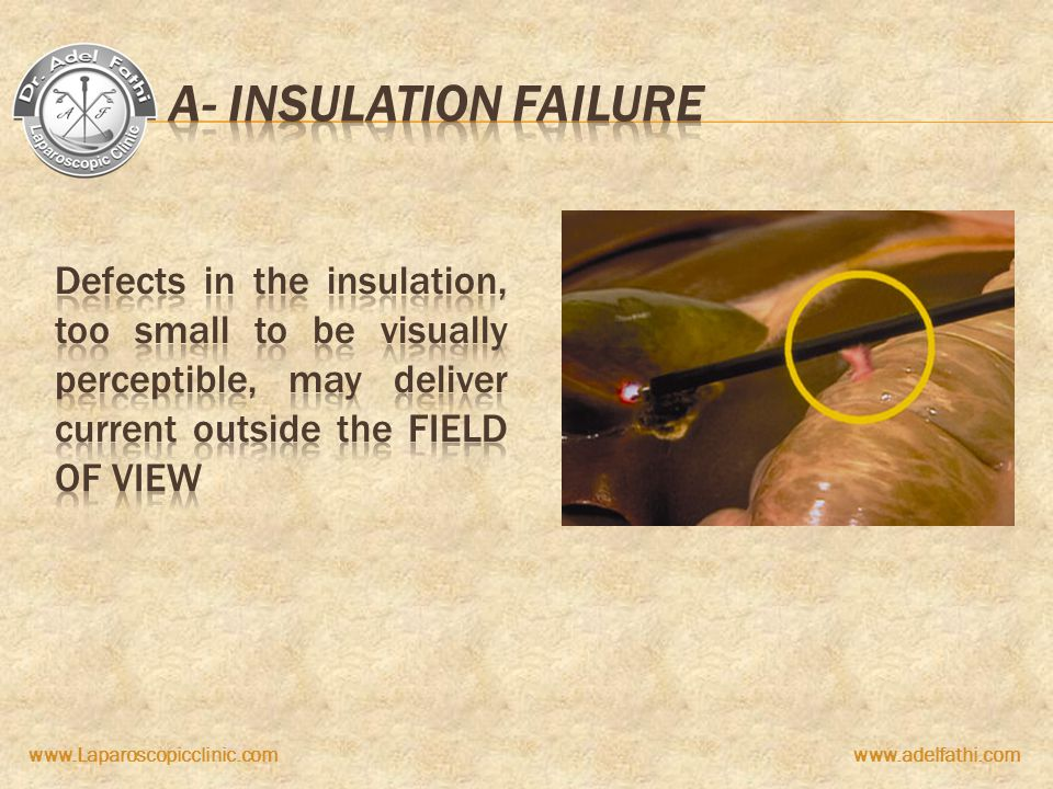 A- insulation failure Defects in the insulation, too small to be visually perceptible, may deliver current outside the field of view.