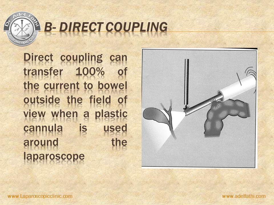 B- Direct coupling