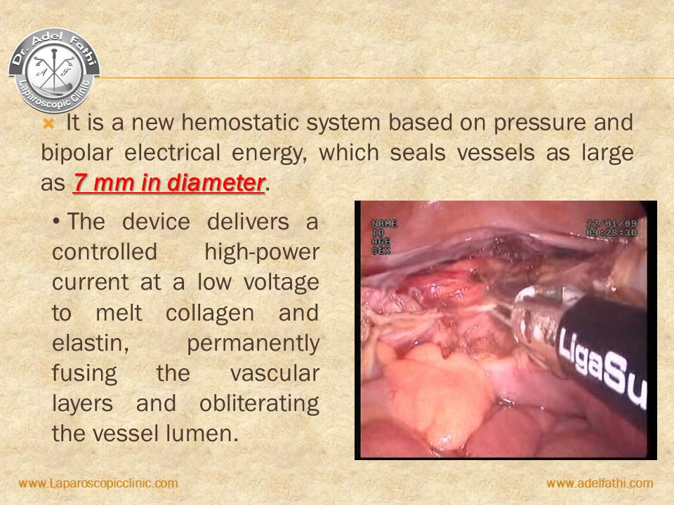 It is a new hemostatic system based on pressure and bipolar electrical energy, which seals vessels as large as 7 mm in diameter.
