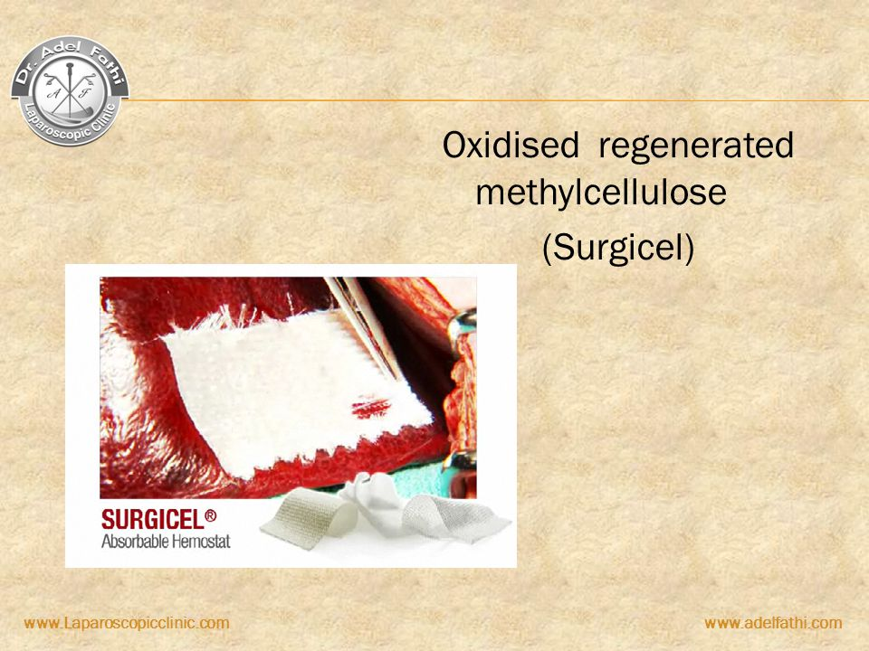 Oxidised regenerated methylcellulose (Surgicel)