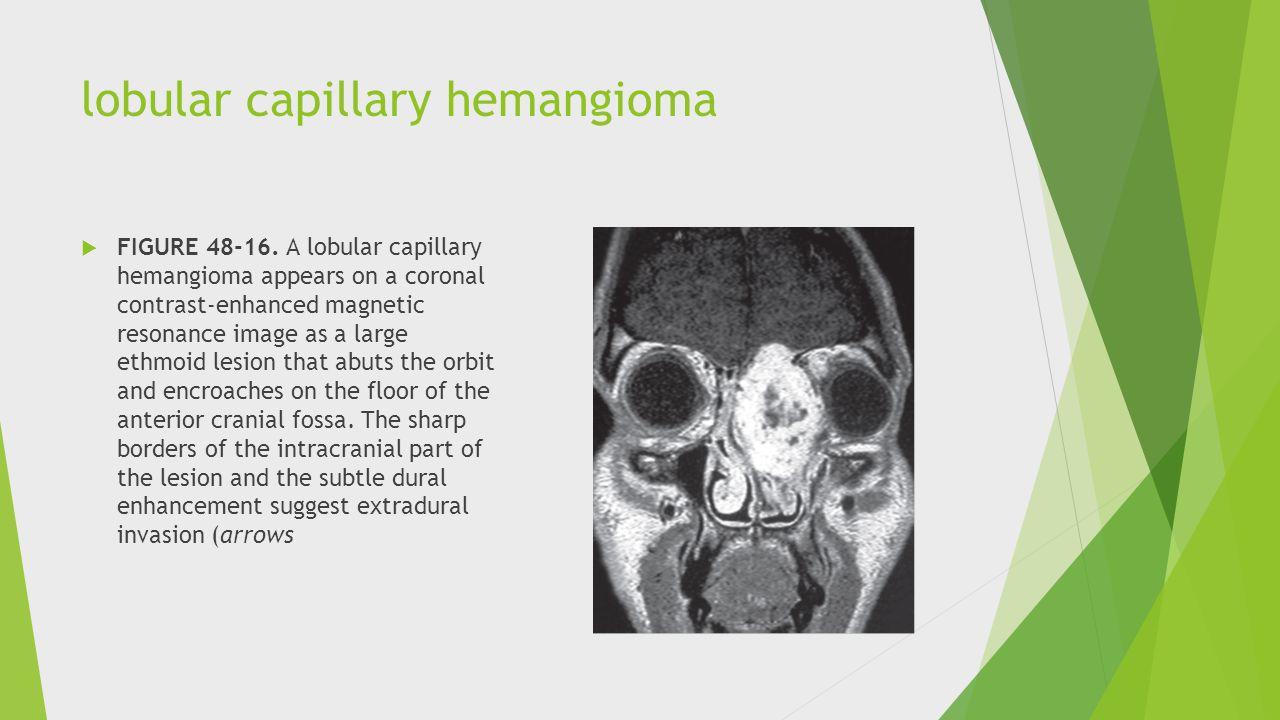lobular capillary hemangioma