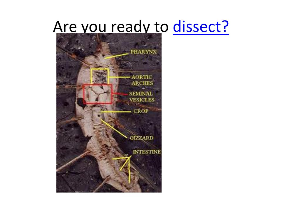 Are you ready to dissect