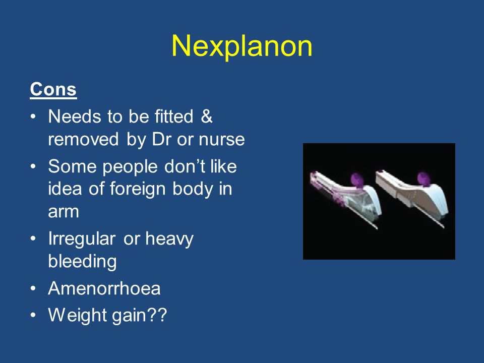 Nexplanon Cons Needs to be fitted & removed by Dr or nurse