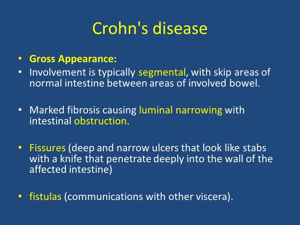 Crohn s disease Gross Appearance:
