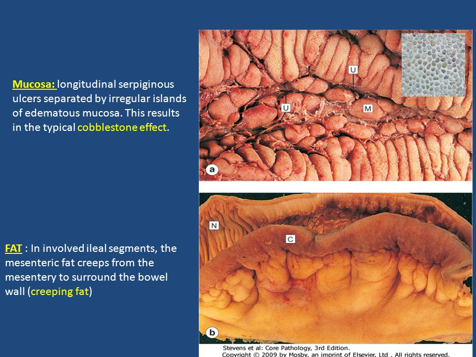 Mucosa: longitudinal serpiginous ulcers separated by irregular islands of edematous mucosa. This results in the typical cobblestone effect.