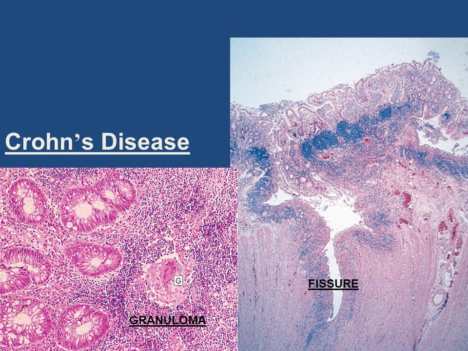 Crohn's Disease FISSURE GRANULOMA