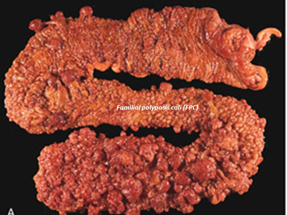 Familial polyposis coli (FPC)