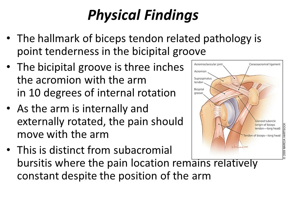 Rotator Cuff Disorders - ppt download