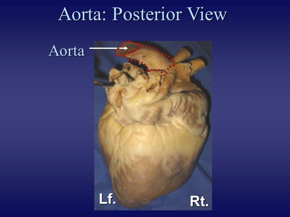 Aorta: Posterior View Aorta Lf. Rt. EXPLANATION: