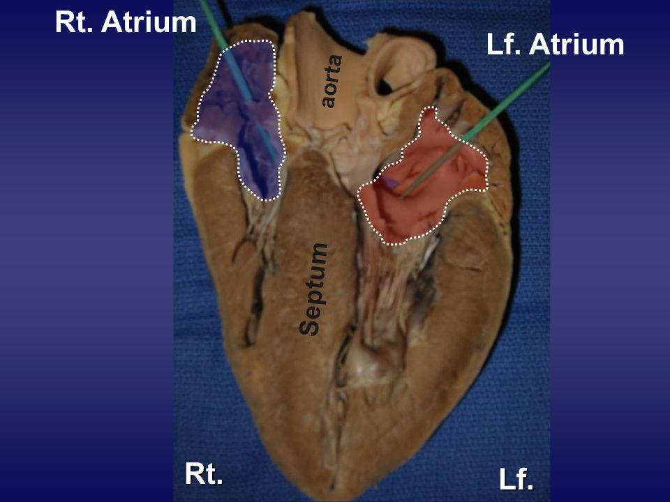 Rt. Atrium Lf. Atrium Rt. Lf.