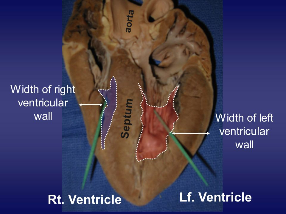 Lf. Ventricle Rt. Ventricle