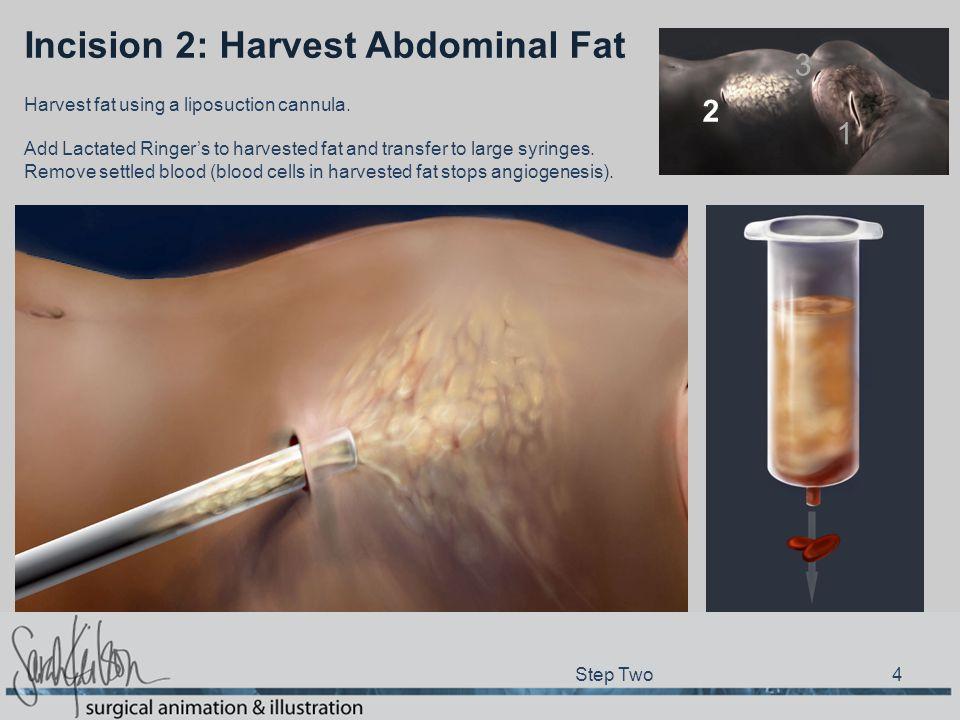 Incision 2: Harvest Abdominal Fat