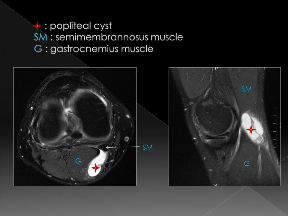 : popliteal cyst SM : semimembrannosus muscle G : gastrocnemius muscle