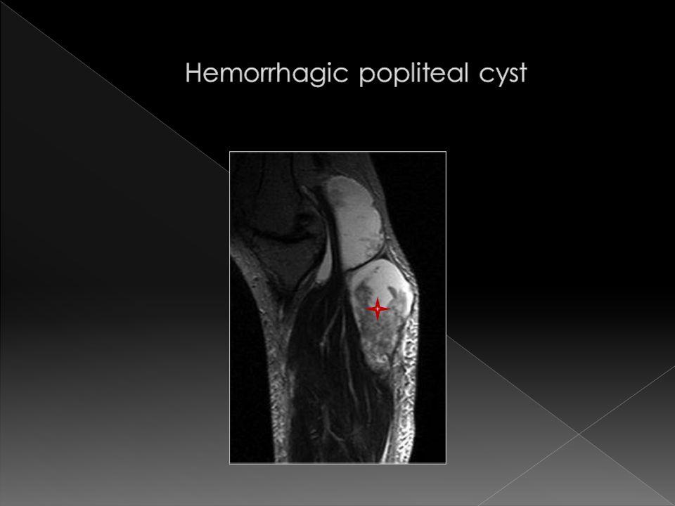 Hemorrhagic popliteal cyst