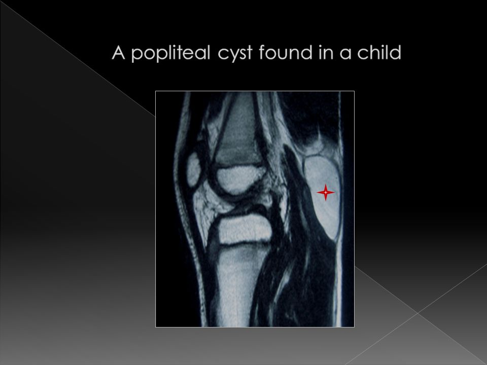 A popliteal cyst found in a child