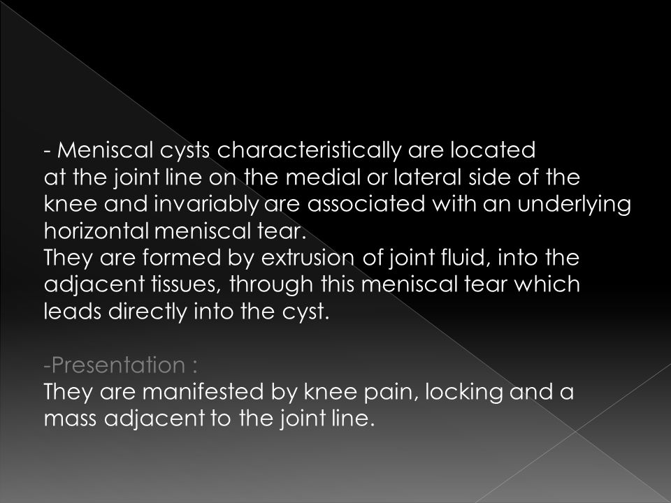 - Meniscal cysts characteristically are located