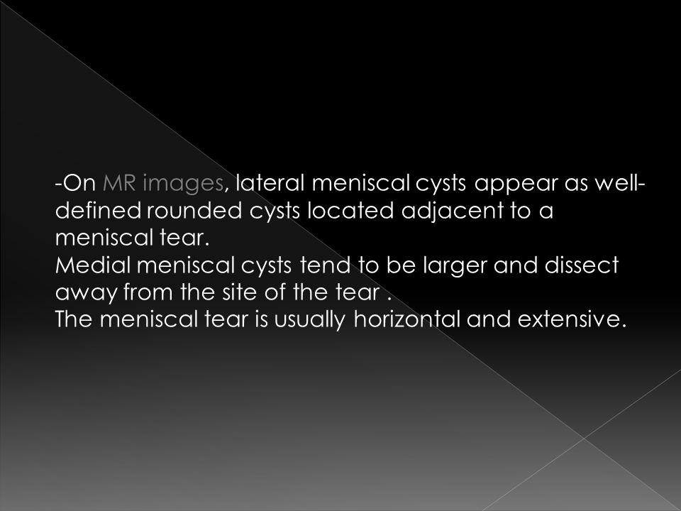 -On MR images, lateral meniscal cysts appear as well-defined rounded cysts located adjacent to a meniscal tear.