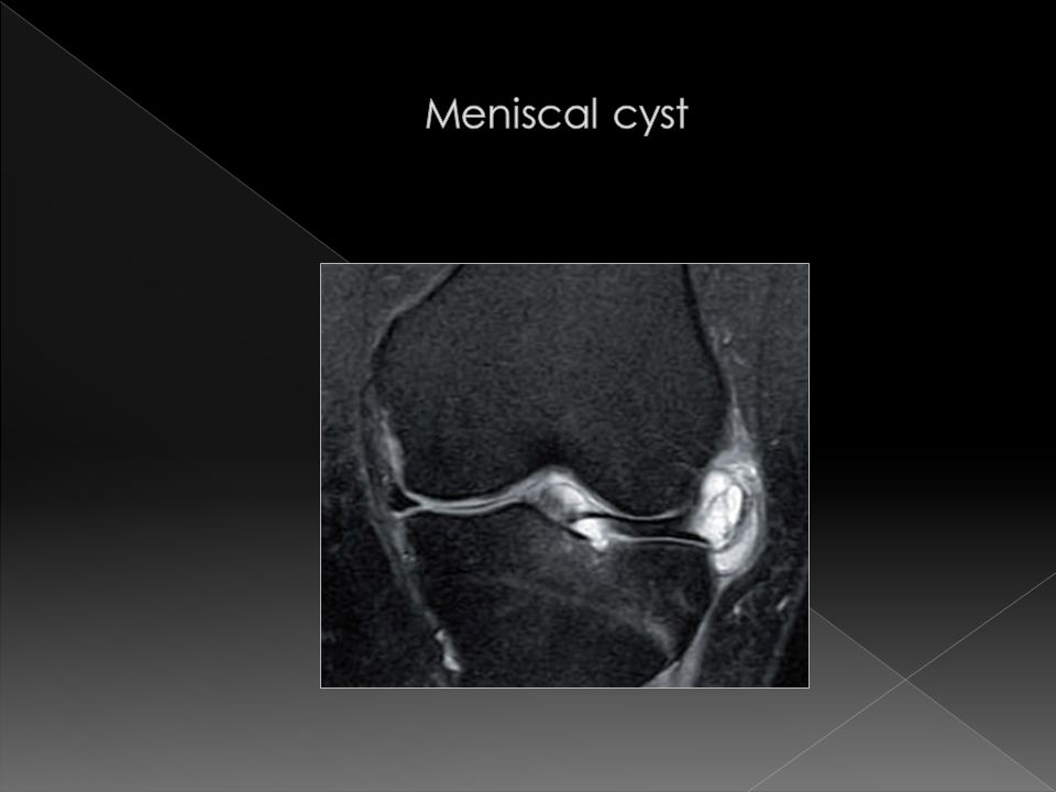 Meniscal cyst