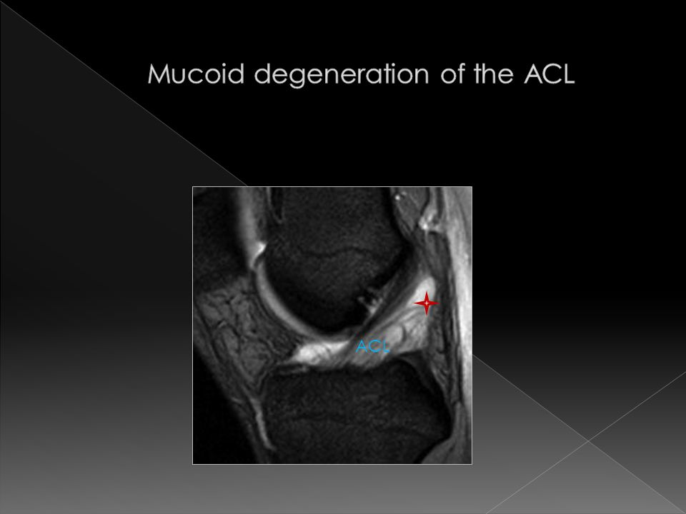 Mucoid degeneration of the ACL