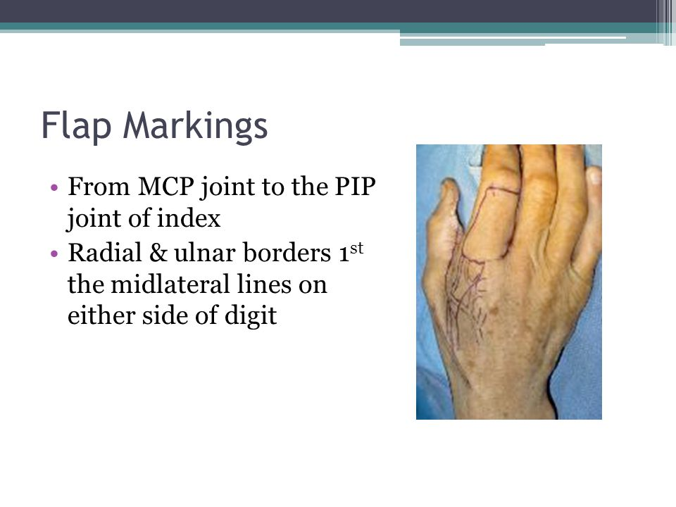 Flap Markings From MCP joint to the PIP joint of index